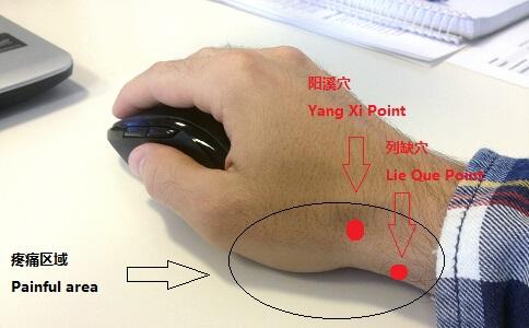 过度使用电脑所引起的手腕疼痛区域